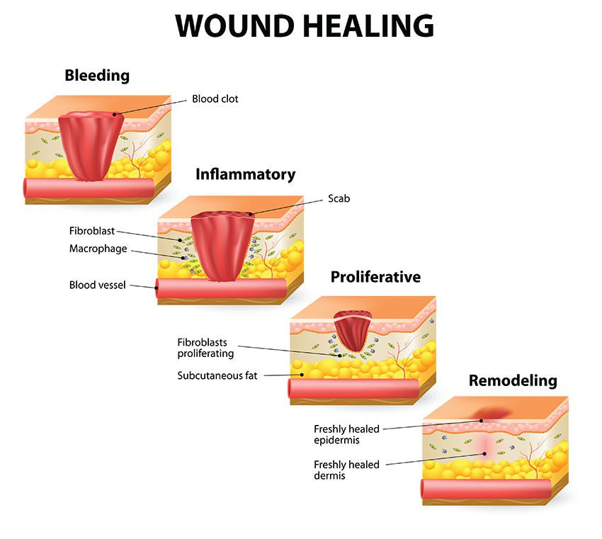 Stages Of Healing Process What Happens When You Injure Yourself